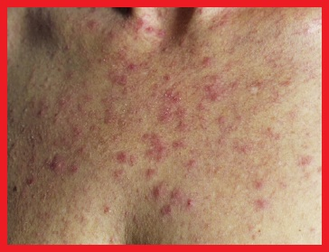 The Many Faces of Rosacea | Rosacea.org