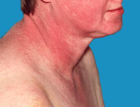 ont i bröstet upp mot halsen